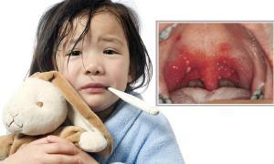 """เริ่มระบาดแล้ว! โรค """"เฮอร์แปงไจน่า"""" ตุ่มแผลในปากเด็ก"""