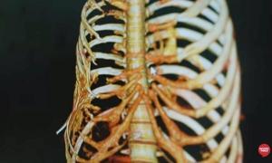โรคกระดูกละลาย (Gorham's Disease) โรคอันตราย ยังไม่พบสาเหตุ-วิธีรักษา