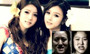 ตะลึง!!!แฝดเกาหลีผ่าหน้าขั้นเทพ