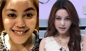 เจาะลึกศัลยกรรมเปลี่ยนชีวิต ของสาวไทยจากรายการ Let me in